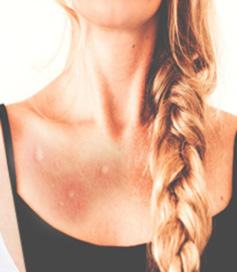 Efectos de la picadura de mosquito tigre